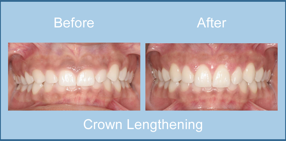 before-after-crown-lengthening