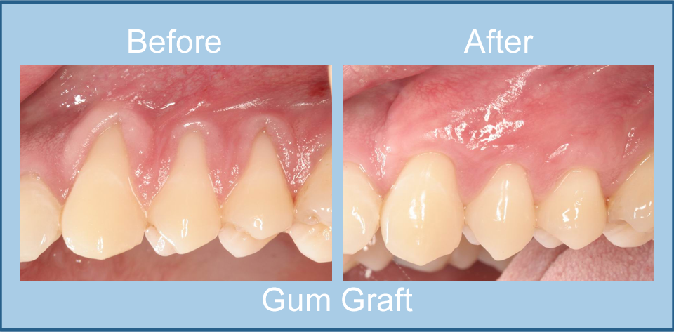 before-after-gum-graft